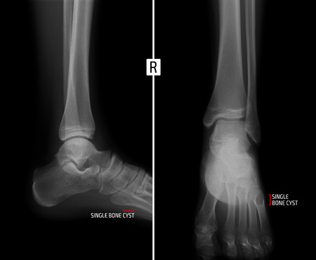 cyst: X-ray of the ankle joint. Shows the bony cyst of the fifth finger of the right foot. Marker. Stock Photo