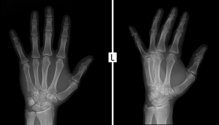 X-ray of the hand. Shows the subluxation of the distal phalanx of the fifth finger of the left hand.