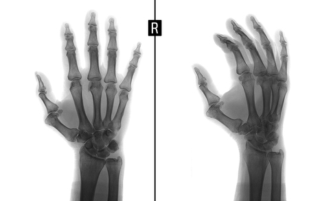 proximal: X-ray of the hand. Shows the subluxation of the proximal phalanx of the first finger of the right hand. Negative. Stock Photo