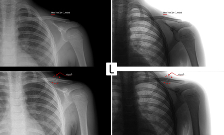 X-ray of the left collarbone. Fracture of clavicle of the child. Consolidation of the fracture. Marker. Positive. Negative.