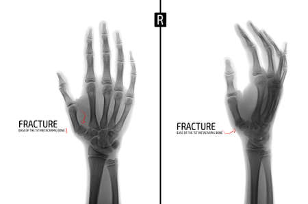 X-ray of the hand. Fracture of the 1st metacarpal bone. Marker. Positive. Negative. Archivio Fotografico