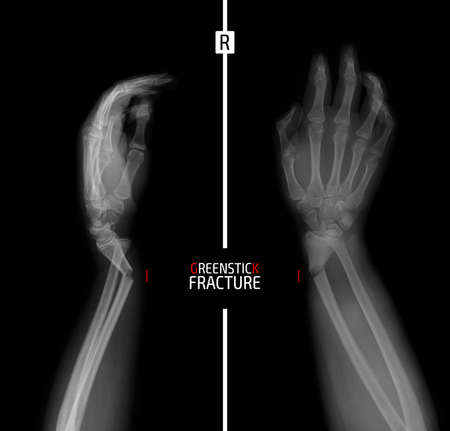 X-ray of the wrist. Greenstick fracture of the radius. Marker.