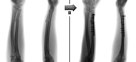 X-ray of the forearm bones. Fracture of the ulna with metalworking and fixation of the metalwork. Negative. Фото со стока
