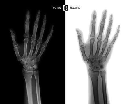 X-ray of the wrist joint. Normal. Negative.