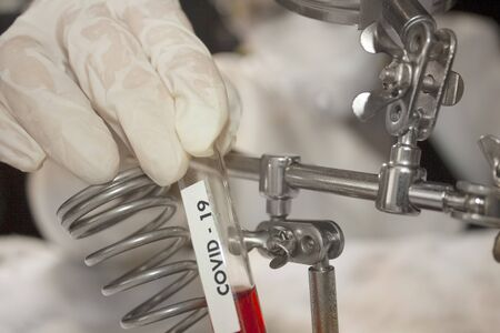 Test tube with plasma for covid-19 study held by hand with gloves science and technology in Mexico city