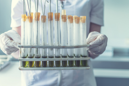 hands with test tubes in the laboratory to study viruses and microbes. selective focus