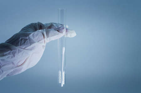 Medical laboratory. A test tube with a clear liquid in the hand in a medical glove. The concept of laboratory research. Close-up.