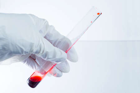Medical laboratory. A gloved hand holds a test tube of blood on a blue background. Elements of a bitmap drawing. Close-up.