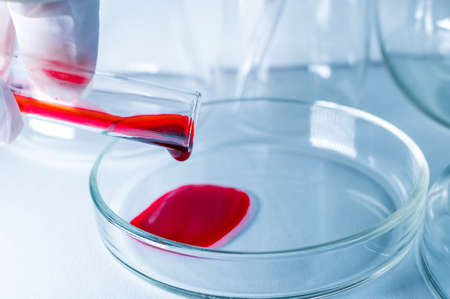 Medical laboratory. A hand in a medical glove pours blood into a petri dish for analysis. Laboratory tests. Close-up.