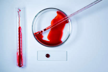 Medical laboratory. A test tube and a Petri dish with blood on a white background. The concept of laboratory research. Close-up.
