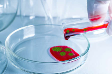 Medical laboratory. A hand in a medical glove pours blood with the virus into a petri dish for analysis. Laboratory tests. The concept of a positive virus test. Elements of a bitmap drawing. Close-up.