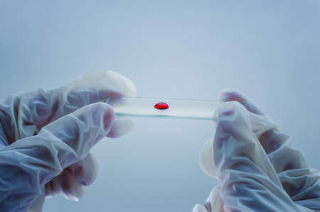 Medical laboratory. A glass plate with blood in the hand in a medical glove on a blue background. The concept of laboratory research. Close-up.