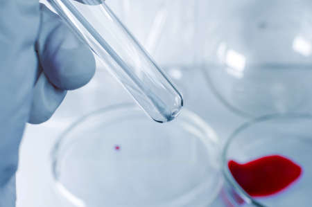 Medical laboratory. A test tube with a cotton swab in the hand of a man in a medical glove. The concept of virus testing. Close-up.