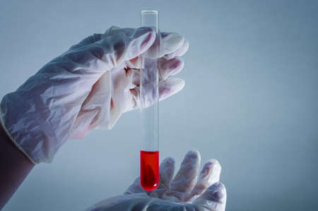 Medical laboratory. A test tube with blood in the hand in a medical glove on a blue background. The concept of laboratory research. Close-up. Banque d'images