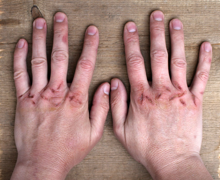 Damaged hands Reklamní fotografie