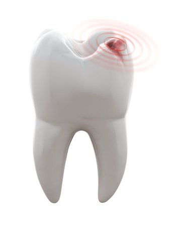 dental caries: 3D illustration of tooth with cavity - Toothache
