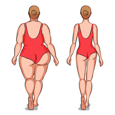liposuction: Fat woman and slender woman dressed in swimsuits. Back view. Overweight and slenderness. Healthy and unhealthy lifestyle