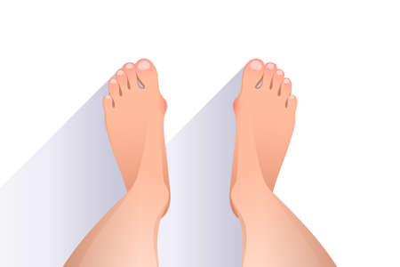 Legs of woman with deformities of joints connecting the big toe to the foot, redness on deformed joints, top view of bare feet over white background. Hallux valgus concept