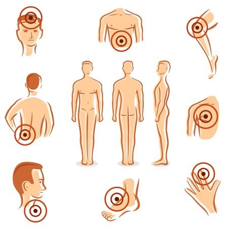 dolor espalda: Las personas con dolor puntos Vector colecci�n Vectores
