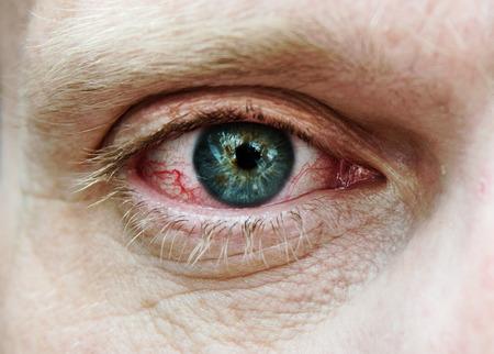 Red tired eye