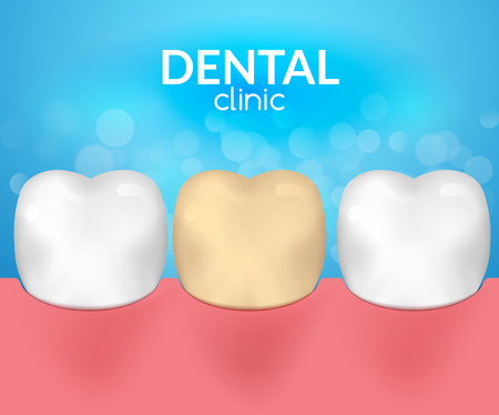 Dental desease clinic concept. Tooth healthcare hygiene. Toothache need dentist. Illustration