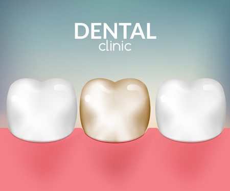 toothache: Dental desease clinic concept. Tooth healthcare hygiene. Toothache need dentist. Illustration