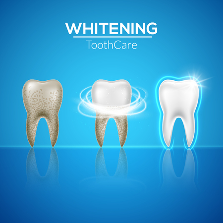 Tooth clean 3d health. Dental realistic dirty whitening. Dentist teeth hygiene isolated medicine template. Illustration