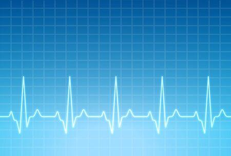 ECG heartbeat monitor, cardiogram heart pulse line wave. Electrocardiogram medical background. Stock Vector - 128507903