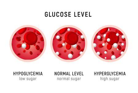 Glucose bloedspiegel suikertest. Diabetes insuline hypoglykemie of hyperglykemie diagrampictogram