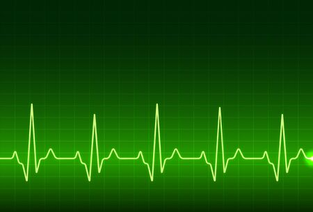 ECG heartbeat monitor, cardiogram heart pulse line wave. Electrocardiogram medical background