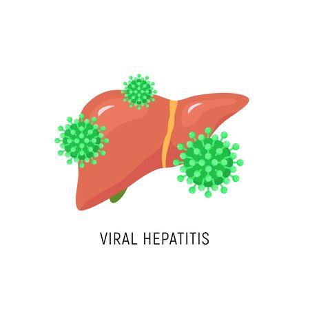 Viral Hepatitis cartoon liver diagram. Hepatic virus c failure hcv vector sign  イラスト・ベクター素材