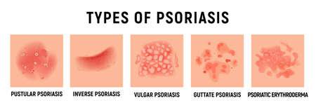 Psoriasis rash vector skin hand infection background. Psoriasis dermatitis eczema cartoon illustration