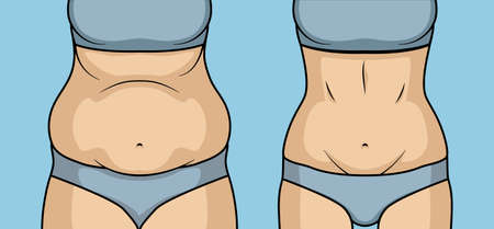 Female belly fat loss plastic surgery. Abdomen fatty girl abs lose before and after cellulite.