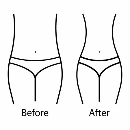 Women waist, weight loss. Weight training and Healthy Eating. Body - before and after. White background. Vector illustration