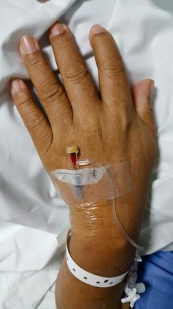 Closeup saline water line at the hand of patient on bed