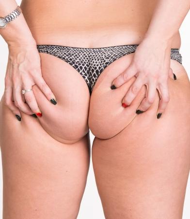 grosse fesse: Femme de contrôle état de la peau Cellulite