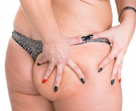 big ass: Woman checking skin condition  Cellulite
