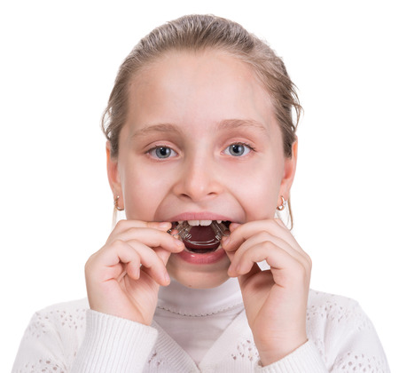 fix jaw: Girl putting on  medical braces for orthodontic treatment over white