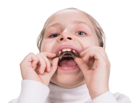Girl putting on  medical braces for orthodontic treatment over white