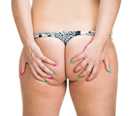 big ass: Woman checking skin condition. Cellulite