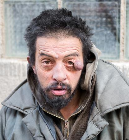 degrade: Homeless man on the street of the city