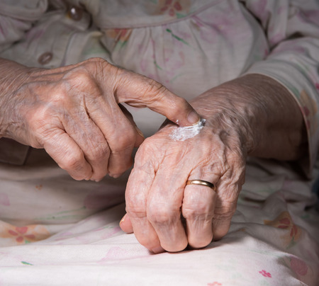 unguent: Old woman applying hand cream at home