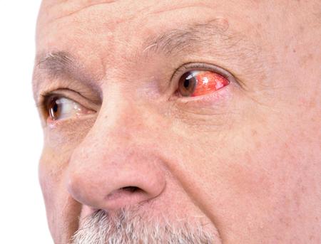 Senior man with irritated red bloodshot eye on a white background Banco de Imagens