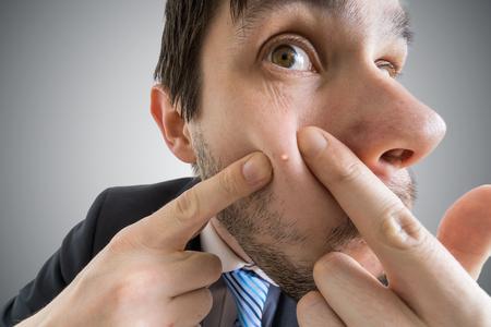 若い男が彼の皮膚ににきびやにきびを絞る。