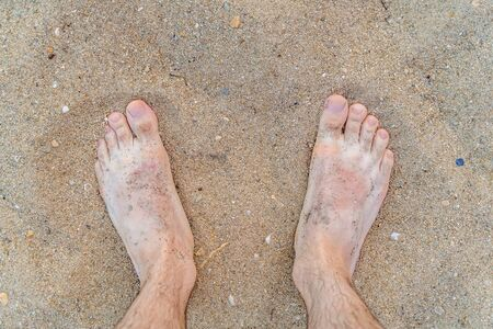 Die Füße des Mannes am Sandstrand im Sommer.