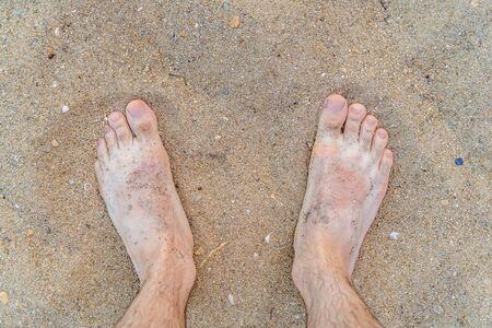 Pies del hombre en la playa de arena en verano.