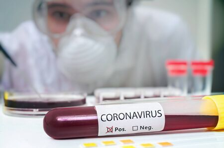 Researcher in laboratory is analyzing blood sample in test tube for Coronavirus test.