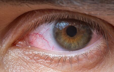 Close-up view on red injured or irritated eye. Stock Photo