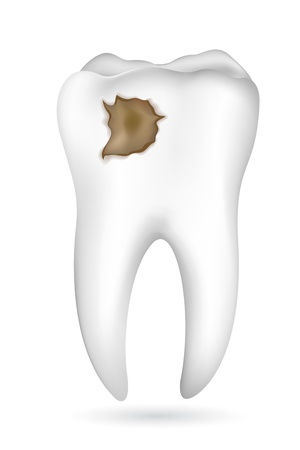 yellow teeth: illustration of cavity in tooth on white background