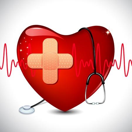 heart disease: Ilustración de un estetoscopio sobre el corazón en la formación médica